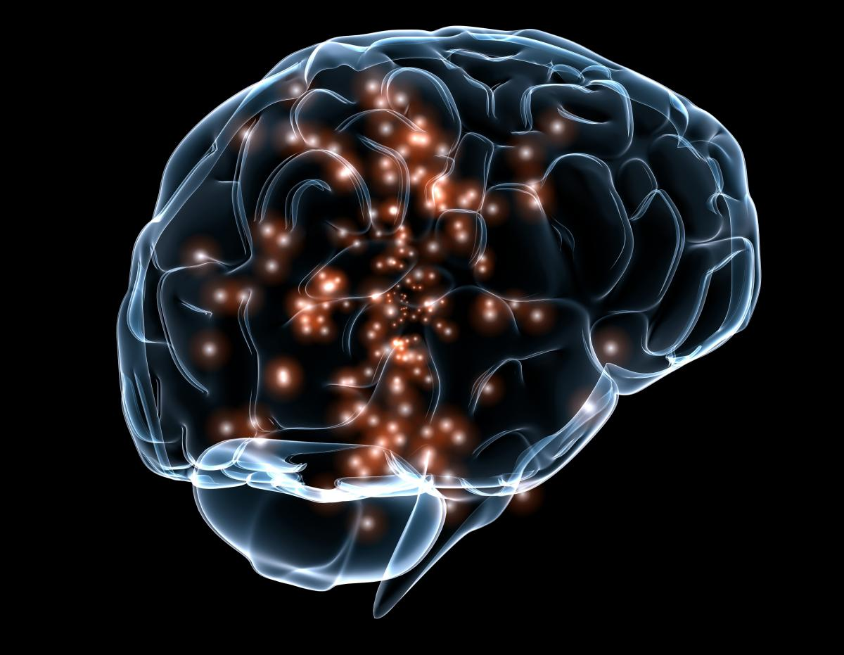 Non-invasive brain stimulation