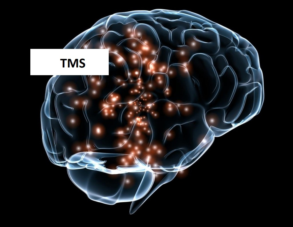 TMS - Transcranial Magnetic Stimulation